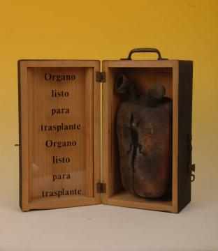 Órgano listo para trasplante